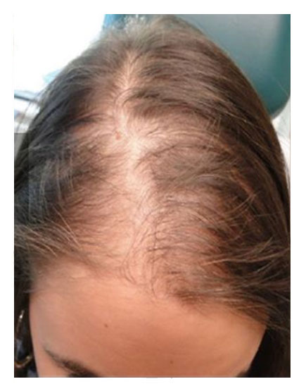 Before Stem Cell Treatment for Hair Loss