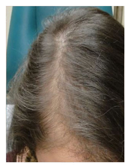 After Stem Cell Treatment for Hair Loss