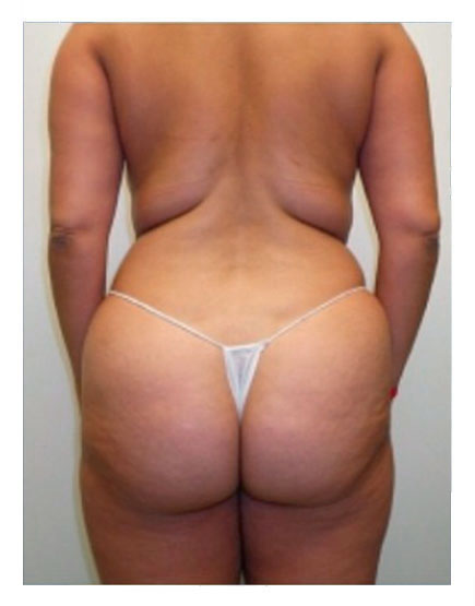Brazilian Butt Lift London - Get Costs, Before & Afters, and