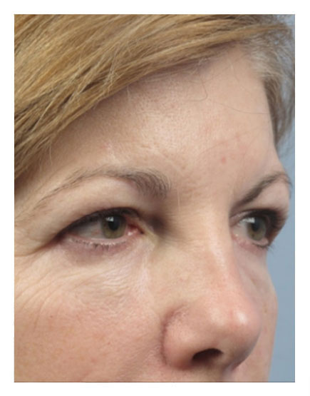 Surgical Brow Lift Before