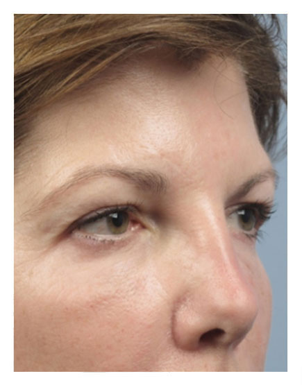 Surgical Brow Lift After