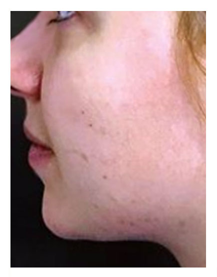 Buccal Fat Removal Before