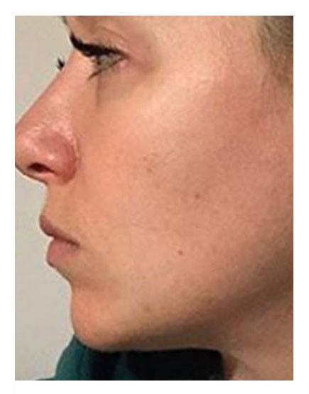 Buccal Fat Removal After