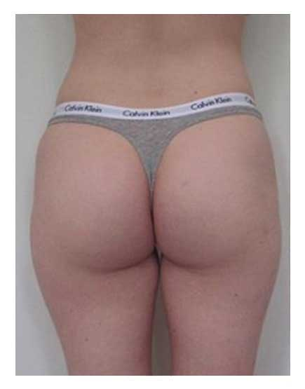 Buttock Augmentation Afer