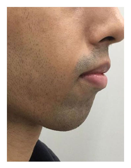 Chin Alteration After
