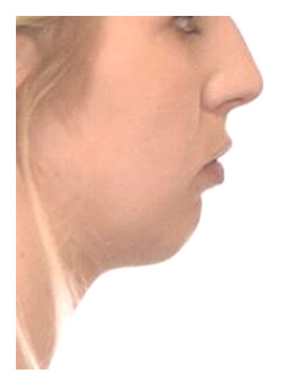 Chin Alteration Before