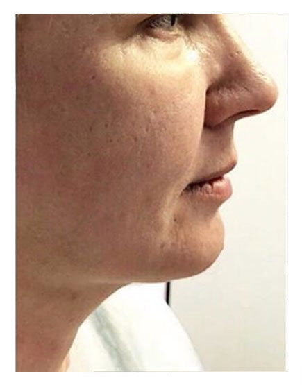FaceTite London - Get Costs, Before & Afters, and Recovery Info