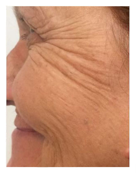 No Knife Facelift Before