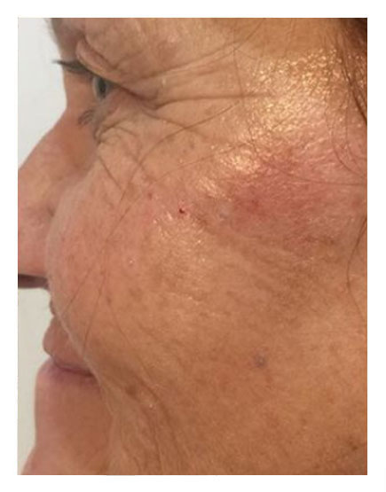 No Knife Facelift After