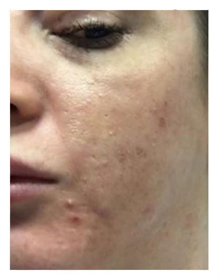 Mesotherapy Before