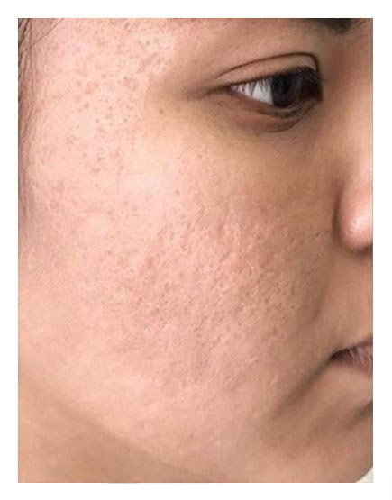 Microdermabrasion After