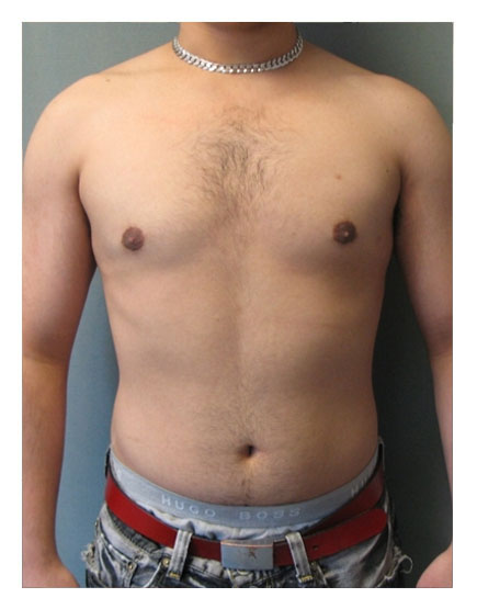 Gynaecomastia After