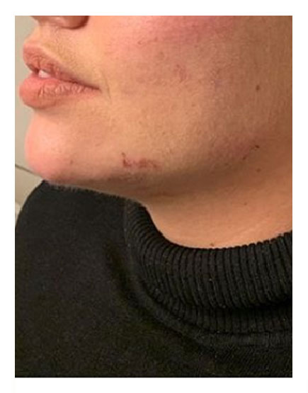 Jawline Filler After