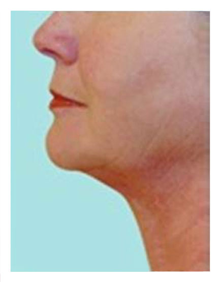 Necktite London - Get Costs, Before & Afters, and Recovery Info