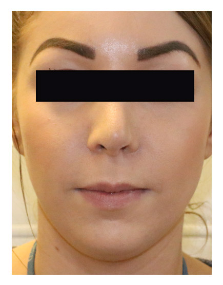 Rhinoplasty London - Get Costs, Before & Afters, and ...