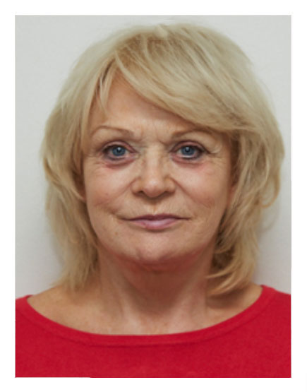 Wide Awake Facelift Before