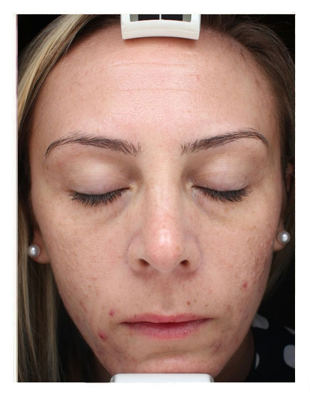 Photodynamic Therapy (PDT) Before