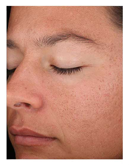 Open Pore Treatments London - Get Causes, Solutions, Costs