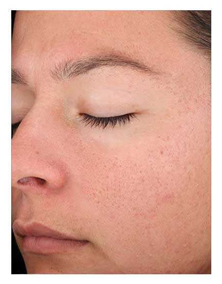 Open Pore Treatments London - Get Causes, Solutions, Costs and