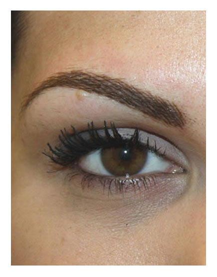 Semi-Permanent Makeup Before