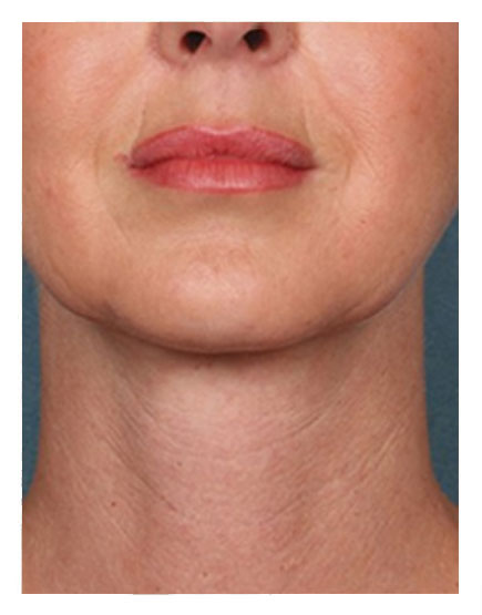 Wide Awake Facelift After
