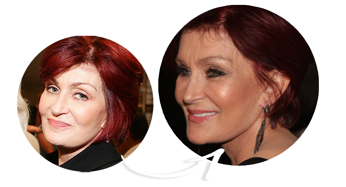 Sharon Osbourne Before and After Facelift