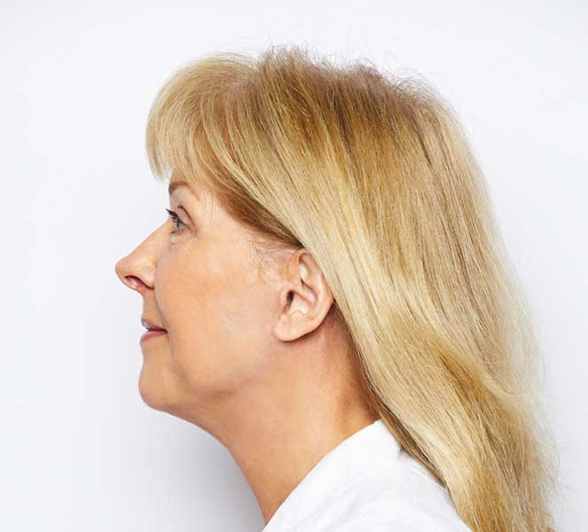 Elaine Stoddart After - Side View