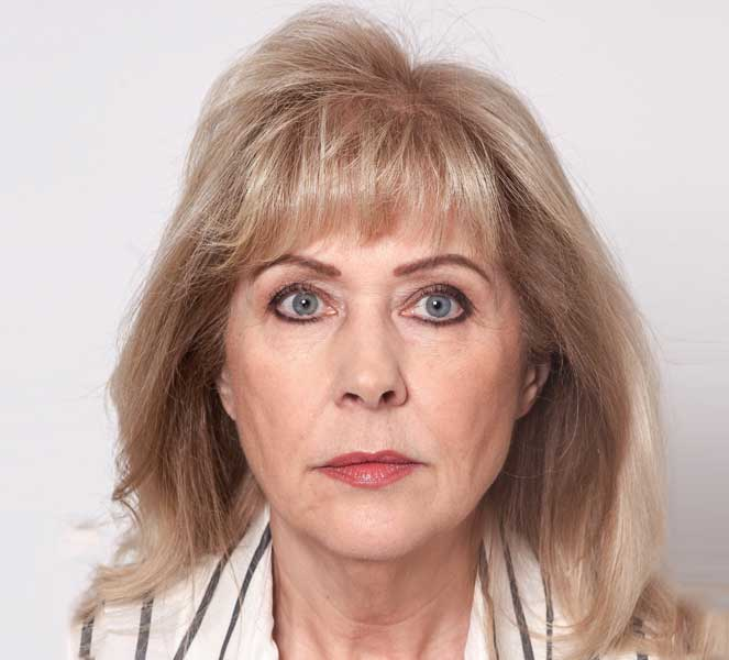 Elaine Stoddart Before - Front View